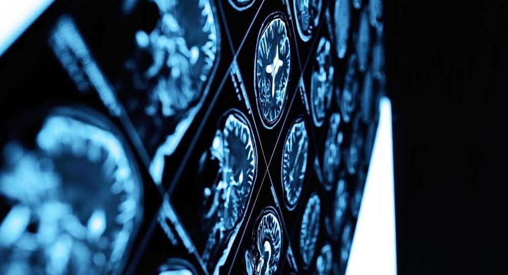 سن سکته مغزی جوان تر شده است